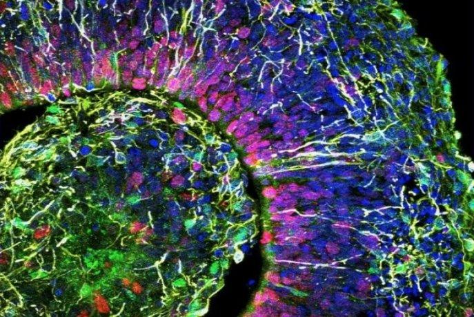 Le coronavirus pourrait s'attaquer au cerveau